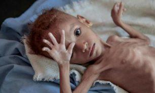 اتهامات أممية لمسؤولين حوثيين بنهب الإغاثة image