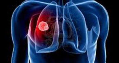 الكحة وغيرها.. هذه الأعراض الأولية للإصابة بسرطان الرئة image