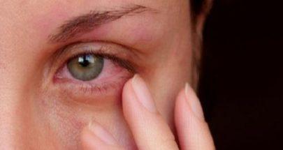 خضار تقلل من خطر الإصابة بإعتام عدسة العين image