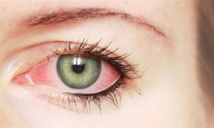 """علامة في العين قد تكون مؤشراً على الإصابة بـ""""كورونا"""" image"""