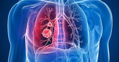 ثلاثة أدوية شائعة تمنع الإصابة بسرطان الرئة image