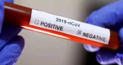 جميع فحوصات الـ PCR في مغدوشة سلبية image