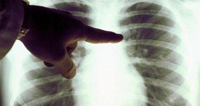"""أوّل عملية زرع رئة لمصابة بفيروس """"كورونا""""... وهذه التفاصيل image"""