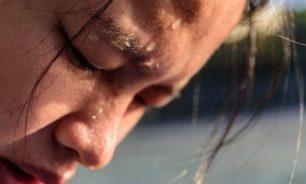 نصائح للحماية من ضربة الشمس والعلاجات المنزلية image
