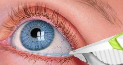 """دراسة تكشف عن أجزاء مخفية من """"لغز"""" مرض بالعين يسبب العمى image"""