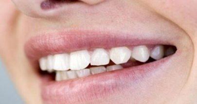 مواد غذائية مضرّة بصحة الأسنان image