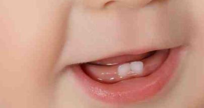 متى تبدأ في تنظيف أسنان طفلك؟ image