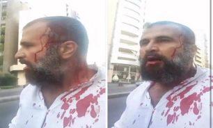 بالفيديو: لحظة الإعتداء على الناشط والمحامي واصف الحركة image