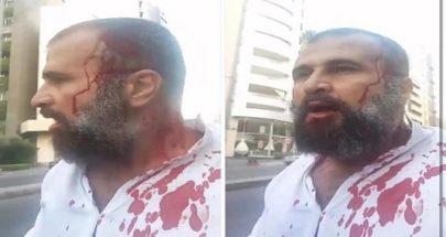 بالفيديو 4 شبان على دراجاتهم النارية أشبعوا الناشط واصف الحركة ضربا مبرحا image
