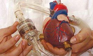 إنجاز طبي... زرع قلب اصطناعي للمرة الأولى في لبنان image