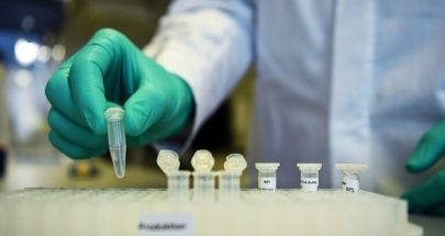 الوفيات جراء فيروس كورونا تتجاوز 10 آلاف في جنوب أفريقيا image