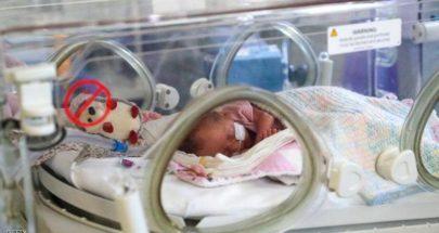 لماذا نادرا ما ينتقل كورونا من الأم المصابة إلى الأجنة؟ image