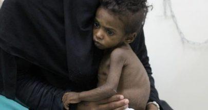 مسؤول أممي: 10 ملايين يمني على بعد خطوة من المجاعة image