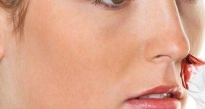 نزيف الأنف المتكرر ينذر بالإصابة بهذا المرض الوراثي image