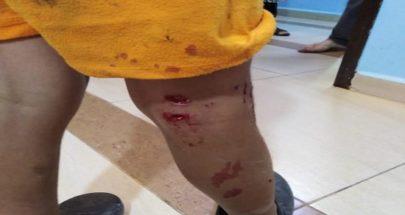 ثعلب هاجم منزلين في صديقين... انقض على طفلين وتسبب لأحدهما بجروح بالغة image