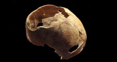 العثور على آثار عملية جراحية جرت قبل 5 آلاف عام لجمجمة بمشرط حجري image