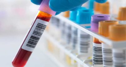 بريطانيا تعلن موعد تجربة تحليل يكشف الأورام السرطانية image