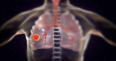 العلماء يحددون بروتينا قد يكون بمثابة هدف علاجي لسرطان الرئة image
