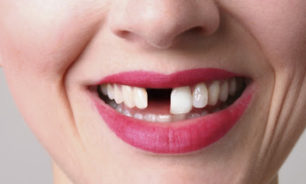 """صحيفة أمريكية: الإصابة بـ""""كوفيد - 19"""" قد تسبب فقدان الأسنان image"""
