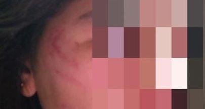 تعنيف القاصرين تابع.. ابنة الـ16 سنة وشقيقتها ضحية والدتهما image