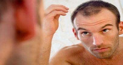 تساقط الشعر أحد الأعراض الهامة للإصابة بكورونا image
