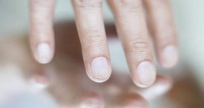 تغيرات محددة في الأظافر قد تشير إلى الإصابة بمرض الكبد الدهني image