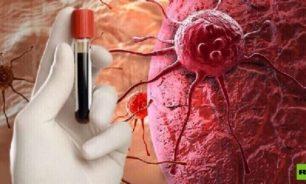 طريقة غير اعتيادية لكشف سرطان الدم مبكرا image