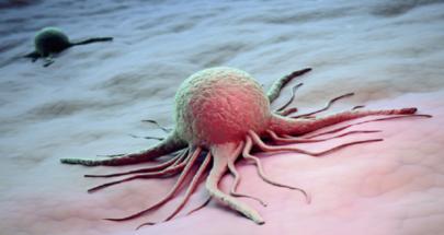 طريقة للوقاية من السرطان image