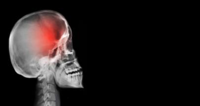 خمس علامات تدل على وجود ورم في المخ! image