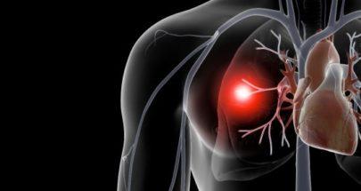 عمليات السل تهدد الرئتين.. ماذا تكشف الدراسات؟ image