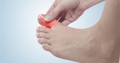علامة في أصابع القدم تدل على ارتفاع الكولسترول الخبيث image