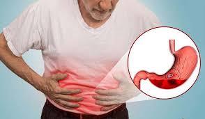 7 علامات تشير إلى أن صحة أمعائك ليست على ما يرام image
