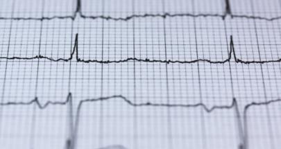 """علامات """"غير عادية"""" لأمراض القلب image"""