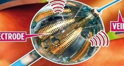 بالون كهربائي بحجم حبة العنب ينظم ضربات القلب image